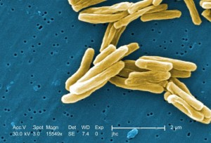 Mycobacterium tuberculosis scanning electron micrograph. Mag 15549X. Source: CDC.